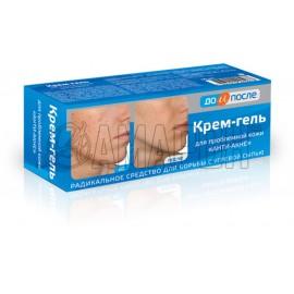 До и после Анти-акне крем-гель для проблемной кожи 50 мл